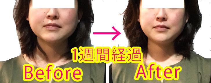 小顔プラス(KogaO+)効果